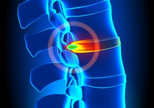 Hernia discal